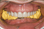 Figure 11  Registration of the molar relationship. The patient was instructed to bite half-hard; dentists must not allow overlapping of the registration material or the bite will be defective.