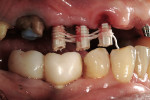 Figure 14  Provisional implant cylinders were modified to reduce the occlusal height. Floss was woven between to provide a latticework for acrylic addition.