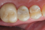Figure 2  A 4-year recall image of a tooth restored with Surpass, a flowable composite (Titan, Apex), and a microhybrid (Vit-l-escence®, Ultradent).