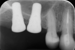 Fig 8. Periapical radiograph taken immediately after implant placement.