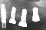 Fig 13. Periapical radiograph immediately after implant placement at sites Nos. 12 through 14.