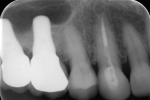 Fig 11. Twelve months after implant placement, periapical radiograph showed signs of mineralized bone in the sinus.