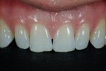 "Figure 5  Notice the incisal wear along with the horizontal ""craze"" line on the incisal third of tooth No. 10."