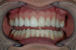 Figure 9  Right side try-in of Durathin veneers to compare ceramic work with the prototypes on the left side.