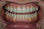Figure 14  The final restorations (Durathin veneers on teeth Nos. 5 through 12) accomplished the patient's goals without any tooth reduction.