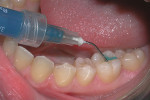 An etchant (37% phosphoric acid) is applied to the occlusal surface of tooth No. 19.