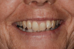 Fig 7. Close-up full smile pretreatment.
