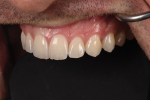 Fig 1. A look at natural teeth shows how embrasure space becomes larger in youthful teeth from central to first bicuspid.
