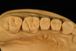 Fig 6. The maxillary contact area is shown from the occlusal view and interproximal view.
