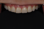 Fig 8. Facial view of older teeth shows the wear effects in the incisal area and how the papilla appears larger based on wear.