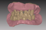 Fig 1. Maxillary and mandibular immediate denture image shows the reference dentition in brown. Digital tooth extraction has started; note space between teeth and ridge.
