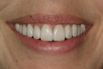 Figure 18  Case complete smile view.