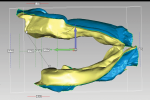 Fig 4. Inter-residual prosthetic space is evaluated and measured for planning overdenture design and tooth placement.