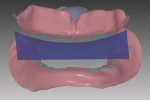 Fig 6. Ridge relationships are marked with dotted line and plane of occlusion is established with virtual set-up template.