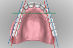 Fig 17. The patient's right side is set on the ridge while the left side is buccal to ridge crest. The first and second molars should be moved so forces are over the ridge, not buccal to ridge.