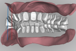 Fig 18. The ability to analyze tooth to ridge relationship by manipulating the design digitally provides a perspective that is impossible with a conventional wax tooth arrangement.