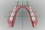 Fig 19. The mandibular posterior teeth are analyzed in relation to retromolar pads and ridge crest.