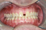 Figure 1  A large diastema between the central incisors required orthodontics and composite bonding to close spaces.