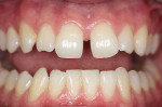 Figure 4  A large diastema existed between the central incisors. The lateral incisors were severely worn.