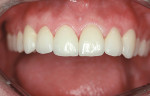 Figure 5  Bonded porcelain restorations closed the spaces and restored lost tooth structure.
