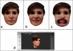 Fig 1. 3D face scans in three positions: (a) relaxed neutral position, (b) smile position, (c) retracted cheeks. (d) Image of the mobile phone used for the facial scan.