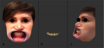 Fig 3. Images showing point-by-point alignment procedure of the face (a) and intraoral (b) 3D models. The same landmarks were marked in each model and then aligned by pairs from 0 to 3 in this case. The result of merging the two models can be seen from a lateral view (c); the face scan was made transparent.