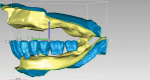 Fig 5. Mandibular teeth are set to determine prosthetic space and plane of occlusion for an implant-supported overdenture.