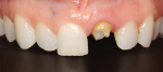 The patient presented with a missing crown on tooth No. 9 and was also unhappy with the chipped incisal edge of tooth No. 8.