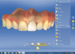 "The software's ""Biogeneric Reference"" feature was used to design the restoration using the shape, size, and form of tooth No. 8."
