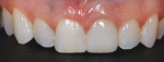 For the final result, a shade mixture was applied to add translucency to the mesial and distal line angles, and the facial surface was stained to match it to tooth No. 8.