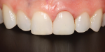 A slight modification was made to the distoincisal edge of tooth No. 8, which helped it look a little softer and more feminine.