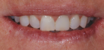 At the 2-week postoperative visit, the patient liked the rounded distoincisal edge of tooth No. 9 and asked for it to be replicated on tooth No. 8.