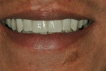 Figure 5  Close-up of the patient's smile with the provisionals in place.