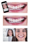 The 3Shape Smile Design app, built on Digital Smile Design principles, helps create highly esthetic restorative treatment plans based on a patient's desired smile. The suggested restoration can be drawn directly on a patient's 2D image using the app—a workflow that takes only minutes.