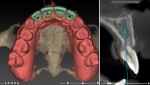 This single software solution from Nobel Biocare and KaVo Kerr allows clinicians, radiologists, operators, assistants, hygienists, and dental technicians to collaborate in a modular solution.