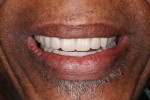 Fig 2. Smile with new maxillary and mandibular complete dentures.