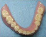 Figure 4  The patient's existing denture was adapted.