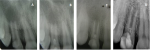 Fig 1. Periapical radiographic analysis: Initial condition of the patient, denoting incomplete root formation and diffuse radiolucent region.  Fig 2. Three weeks after root canal irrigation treatment, denoting decrease in radiolucent region and neo-formation of hard tissues along the apex of tooth No. 7.  Fig 3. Three months postoperative, denoting stronger bone formation on periapical regions and maintenance of canal dimensions (thickness and height).  Fig 4. Follow-up radiography at 72 months, denoting obliteration of tooth apex and maturation of bone tissues in the periapical regions.