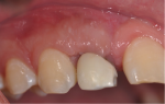 Fig 8. Clinical aspect 3 months after periodontal surgery, which was performed to resolve the gingival discoloration issue (patient's major concern at 72 months).