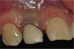 Fig 7. Clinical aspect 72 months after treatment, denoting strong discoloration of cervical gingival tissue.