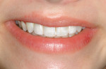 Figure 12  Full smile at 1-year postimplant.