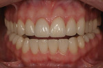 Figure 4  Postoperative view of a patient treated with a combination of veneers and crowns. They exhibit a consistent appearance of color, value, and translucency.