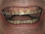 Figure 1  A 40-year-old man presented with the desire to improve his smile and restore his worn enamel.