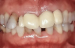 Fig 6. Clinical photograph of patient in Case 2 at initial visit. Patient complained of chewing impairment due to tooth mobility.