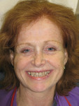Figure 1  Preoperative photograph. The patient felt self-conscious about her smile and wanted them straighter and whiter. Note the asymmetry of her smile and facial structures, and note the way the maxillary arch canted downward toward the right.