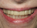Figure 9  The patient wore her Snap-On Smile, which allowed her to try on a new, reversible smile before committing to veneers, for almost 2 years.