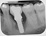 Radiograph of the same implant taken 3 years later, demonstrating how rapidly peri-implantitis bone loss occurs.