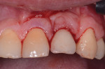 View immediately following laser-assisted peri-implant mucositis treatment with an Nd-YAG laser.