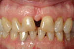Patient's initial presentation with fractured central incisors.