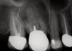 Radiograph of tooth No. 3, revealing periapical pathology.